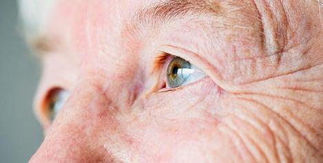 1-preguntas-frecuentes-cirugia-operacion-cataratas-enfermedad-ocular-oftalica