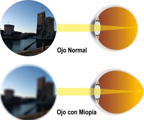 RetinaVitreo_Miopia-Desenfocada-1