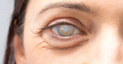 cataract-surgery-complications-1200x630_compressed
