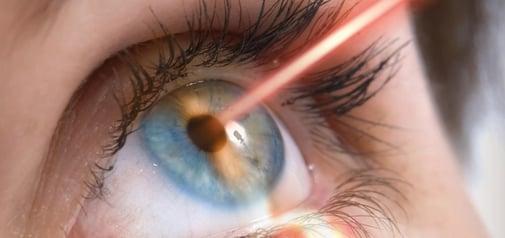 cuidados-despues-cirugia-laser-ojos-tratar-ojos