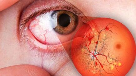 retinopatía-diabética-810x456